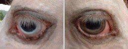Lukas' eyes